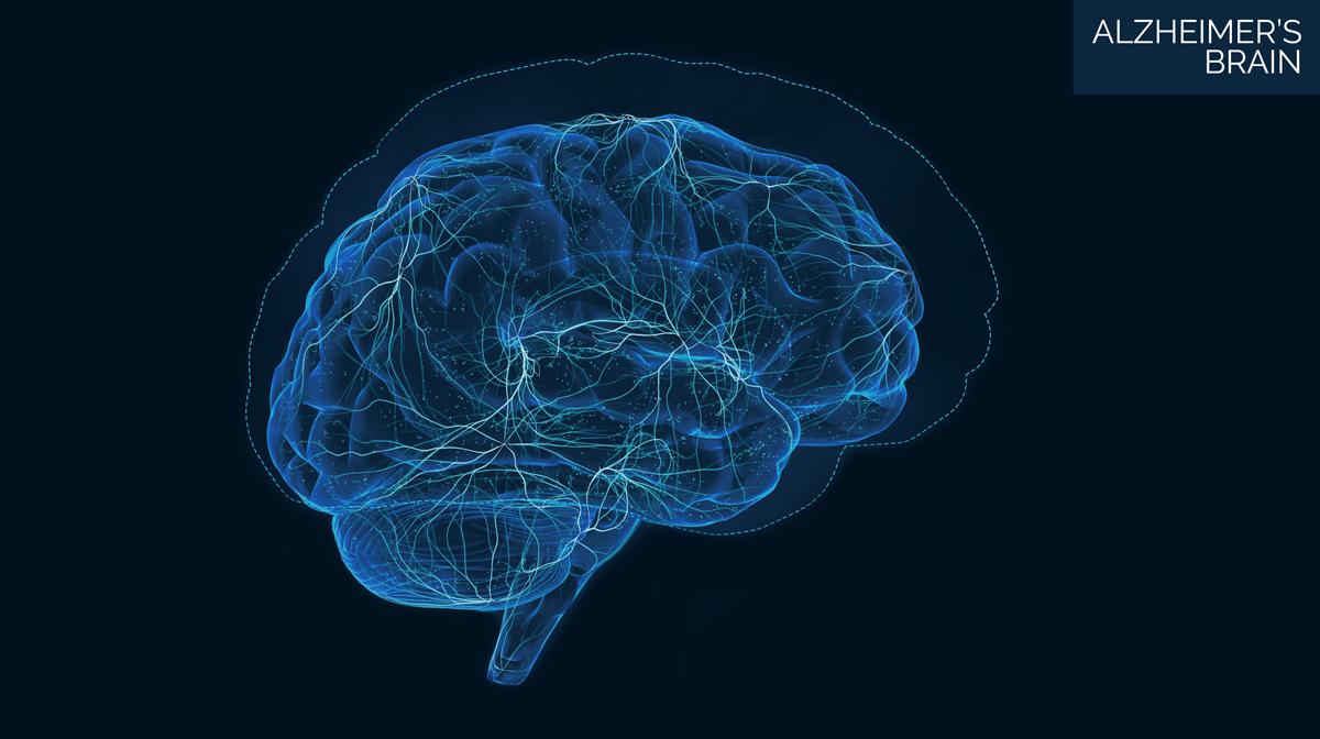Illustration of an Alzheimers brain