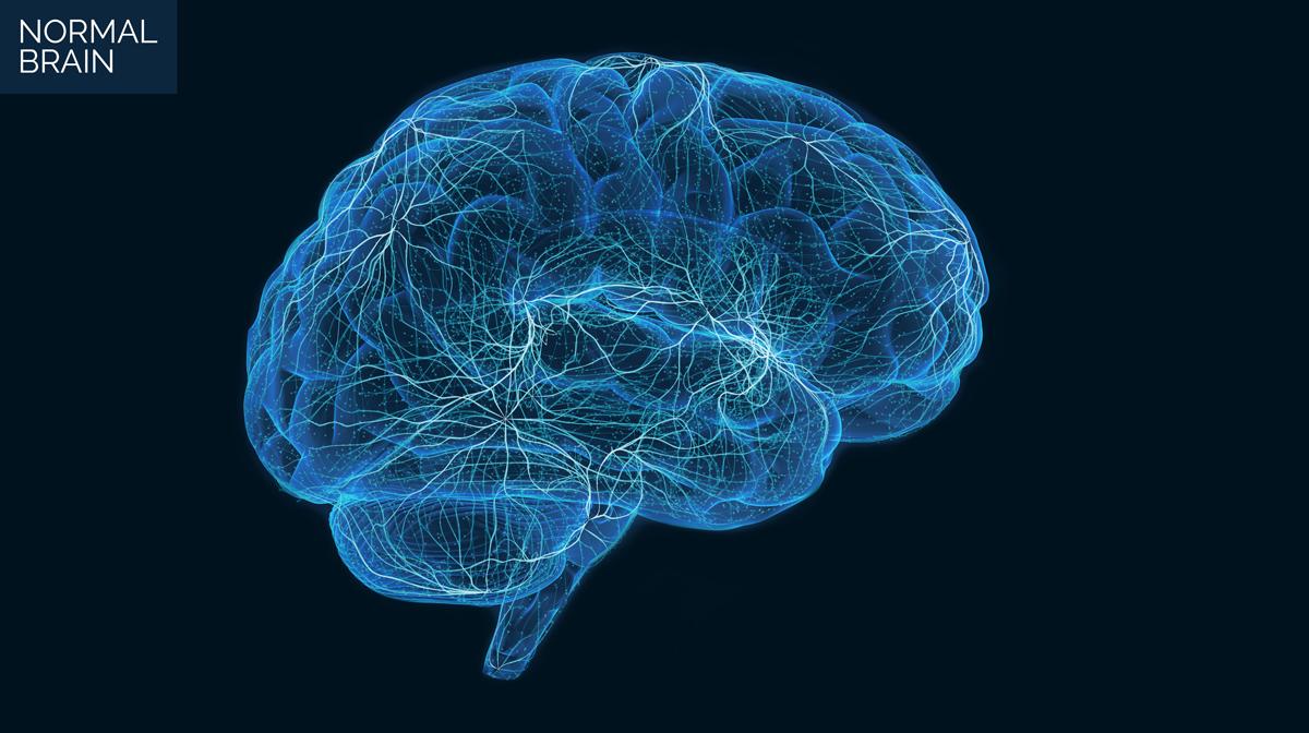 Illustration of a normal brain